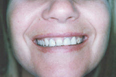 Best Dentist in Penrith Before Dental Corwns