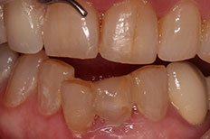 Tooth Bridgework Dental Clinic in Penrith