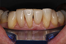 Penrith Dental Clinic after porcelain veneers
