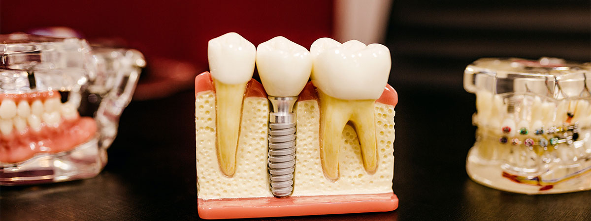 dental implants penrith